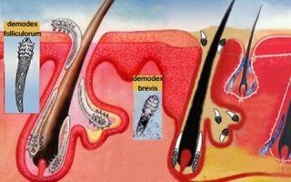 Симптомы и лечение волосяного клеща у людей