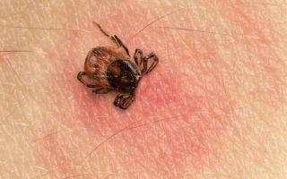 Как выглядит клещ под кожей у человека: фото, симптомы и лечение