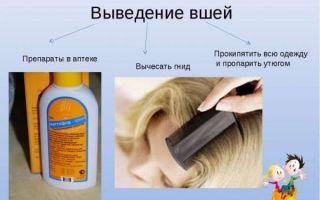 Как быстро вывести вшей и гнид в домашних условиях